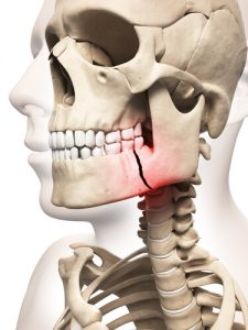 fractured bone causing jaw pain on one side