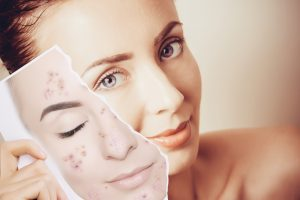 face peel for acne