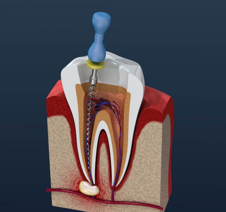 failed root canal symptoms