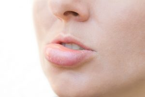 reduce swollen lip