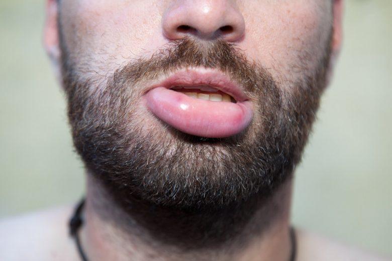 reduce swollen lip